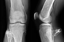 This is an image of someone's leg with osteochondromas.